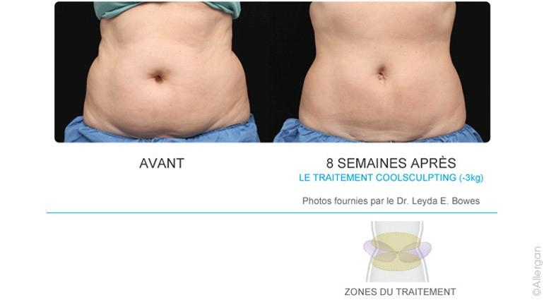 Coolsculpting-2-Ventre.jpg