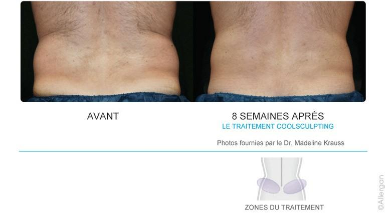 Coolsculpting-6-Hanches.jpg