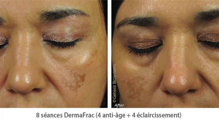 Treating melasma