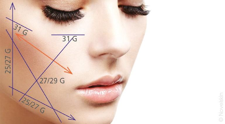 Positioning of the tensor threads on the face and body
